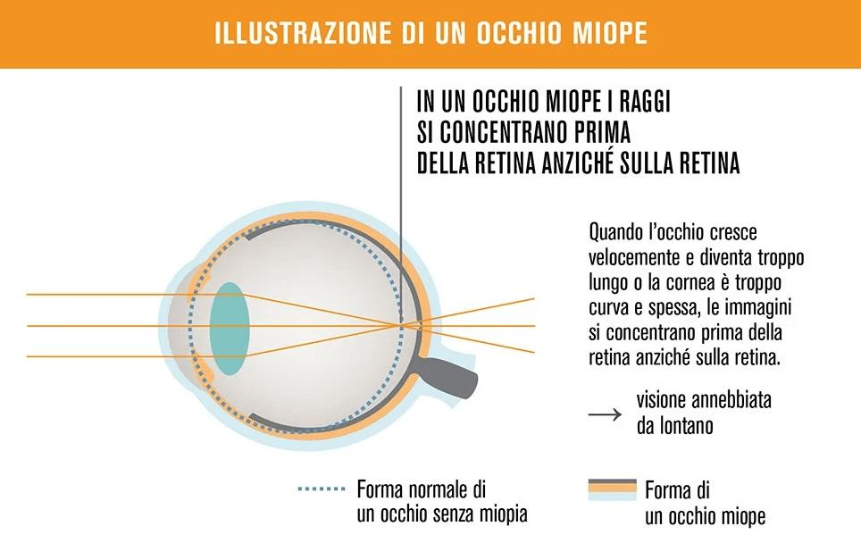 progressione della miopia